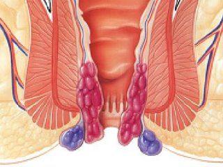 Hemoroid Nedir?