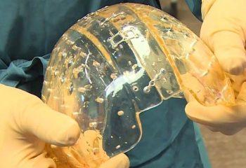 3D Yazıcıdan Çıkan Kafatası Protezi